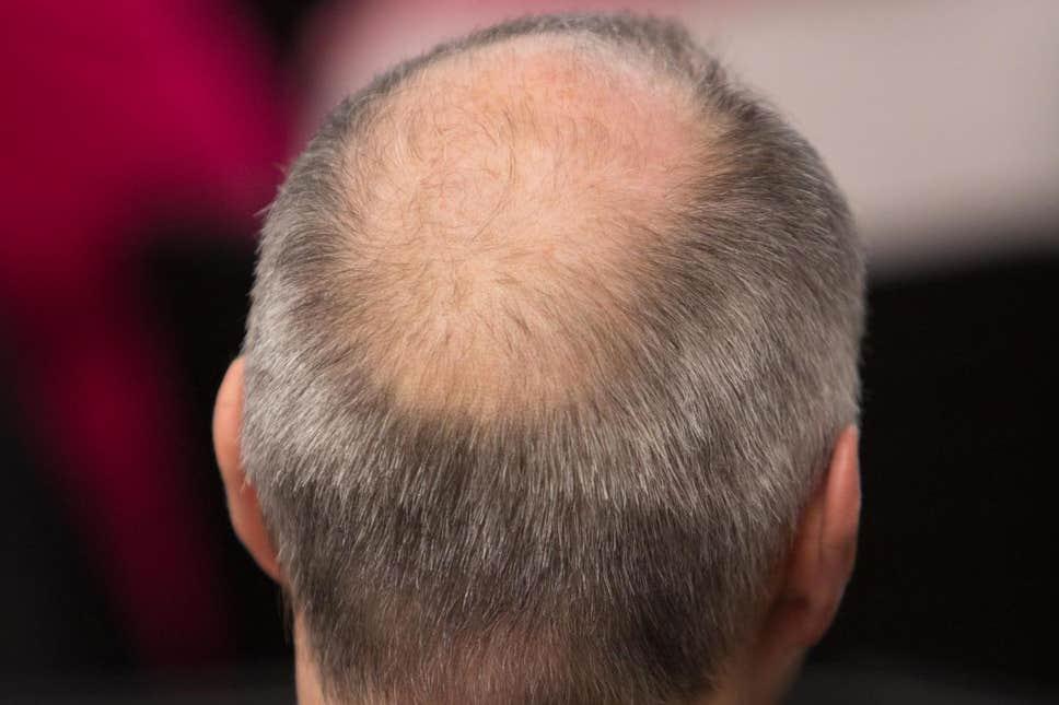Bald Man.jpg